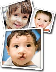 Operation Smile Kids